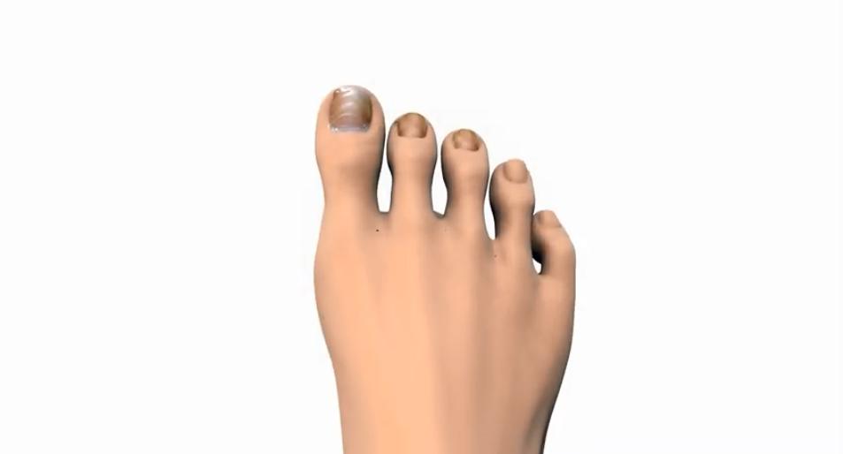 onychomycosis video